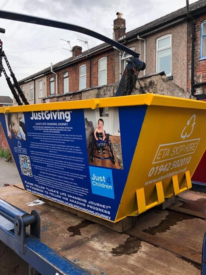 Skip Hire Company Supports Child with Brain Damage